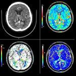 پاورپوینت-سی-تی-اسکن-مغزی-(brain-ct)