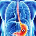 پاورپوینت-اپیدمیولوژی-سرطان-معده