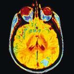 کاربرد-پردازش-تصویر-در-پزشکی-(تشخیص-تومور-با-نرم-افزار-متلب)