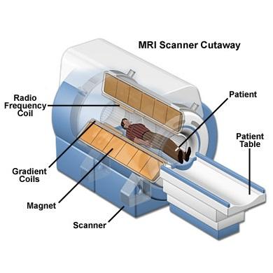 بررسی تصوير برداري تشديد مغناطيسي (MRI)