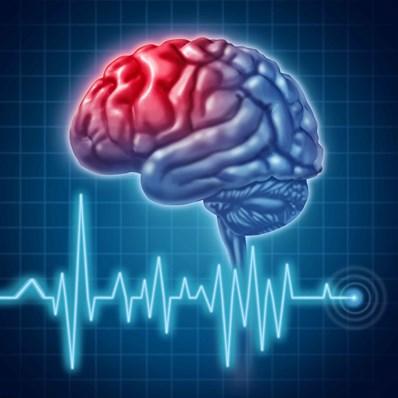 پاورپوینت بررسی سکته مغزی